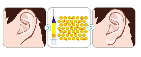 玻尿酸丰耳垂恢复时间跟什么有关
