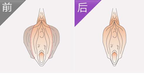 分享阴蒂肥大缩小手术步骤详解