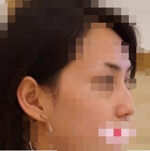 中山韩妃整形驼峰鼻矫正案例 看看术鼻子是不是好看了很多