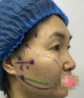 南京美莱医疗美容医院埋线提升案例 皮肤变好年轻化