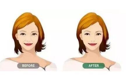 分享脸部除皱手术各大方法