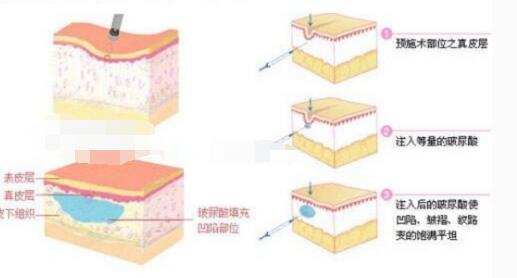 今日热搜:玻尿酸除皱需要注射1-2针保持肌肤