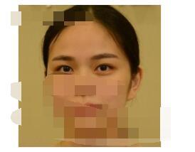 深圳米兰柏羽医院做双眼皮案例