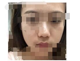 广州美莱医院做膨体隆鼻案例