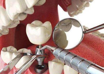 分享种植牙的7大过程