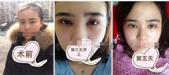 西安西京做双眼皮热门医生攻略 口碑技术介绍全面