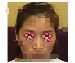 广州美莱医院做隆鼻修复案例 鼻子术后自然很多附加照片