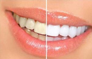 医学口腔中常用的三种牙齿美白方法,你们都了解了吗