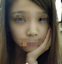 安徽韩美整形医院鼻综合案例 鼻子精致颜值超高