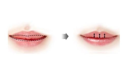 做厚唇改薄的效果怎么樣