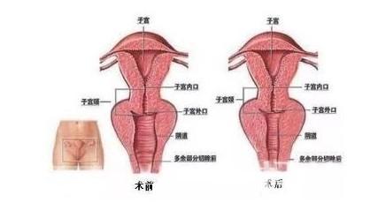 做陰道緊縮術的優勢有哪些
