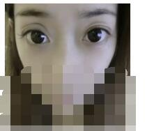 吉林铭医医院分享双眼皮手术案例 术后眼睛又大又圆很自然附加照
