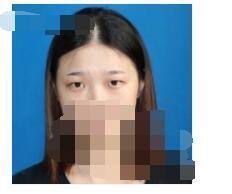 合肥华美医院分享双眼皮案例 术后眼睛又大又自然附加照片