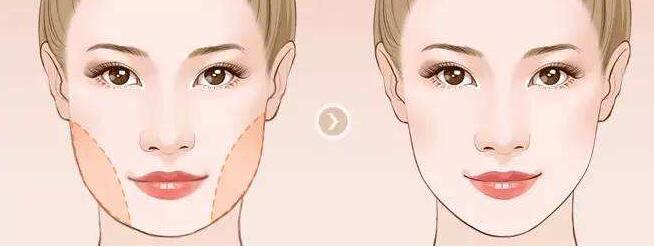 下頜角整形會對人的咬肌能力有影響嗎