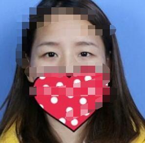 南昌韩美整形双眼皮案例 术后很满意 关键是医生技术好