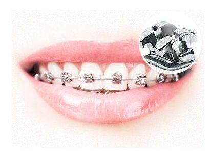 牙齿矫正期间饮食注意事项大全