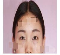 广州曙光医院分享双眼皮案例 眼睛恢复好满意附加照片