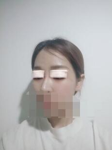 西安悦华整形双眼皮案例