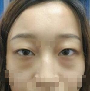 昆明韩辰整形去眼袋手术案例 大家进来看看我术后的效果吧