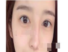 北京伊美尔医院分享双眼皮修复案例 眼睛变得好看了附加照片