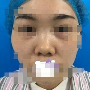 长沙华韩华美整形硅胶隆鼻案例 两个月后的我
