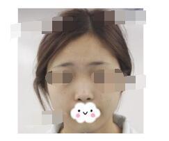南宁华美医院分享割双眼皮+假体隆鼻案例 鼻子和眼睛恢复好附加图