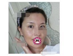 济南瑞丽医院分享自体脂肪全脸填充案例 脸自然饱满附加照片