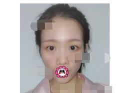 济南瑞丽医院分享埋线双眼皮案例 眼睛变得很美附加照片