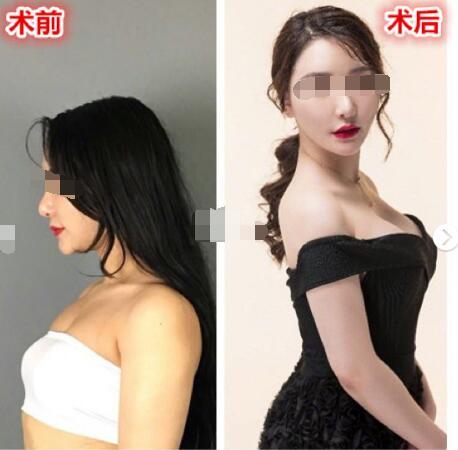 今日看點:假體隆胸選擇三處切口