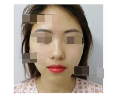宁波美莱医院分享线条提升案例 脸上肌肤好看多了附加照片