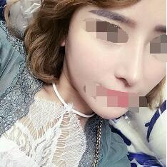 厦门林伟亮做的韩式分段式隆鼻案例