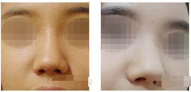北京联合丽格第一医院分享膨体隆鼻案例 鼻子立体感很强附加照片