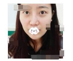 四川军大附属医院做埋线提升案例 脸型饱满了很多附加照片