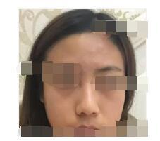 北京艺星医院分享膨体案例 鼻子立体感好附加照片