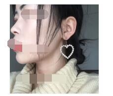 上海华美医院分享膨体隆鼻案例 鼻子变的很立体附加照片