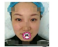 上海薇琳医院分享膨体隆鼻案例 鼻子术后更自然了附加照片