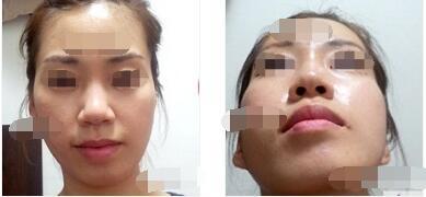 上海伊莱美医院分享颧骨颧弓整形术案例 脸型立体好看