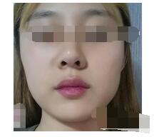 上海华美医院分享V-LINE瓜子脸手术案例 瓜子脸出炉了附加图