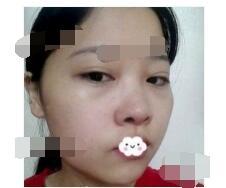 北京南加医院颧骨整形+下颌角磨骨案例 脸型恢复快附加照片