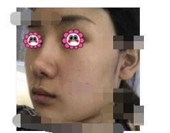 四川华美紫馨医院分享面部吸脂案例 脸型很好看附加照片