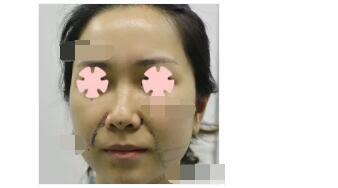 北京丽都医院分享埋线提升案例 脸型年轻了很多附加照片