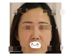 杭州美立方医院分享埋线提升案例 皮肤好看很多附加照片