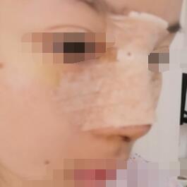 杭州新友好整形隆下巴+耳软骨隆鼻手术案例