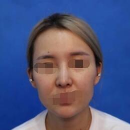 西安徐楠楠医生面部提升案例 可以看出医生技术不错