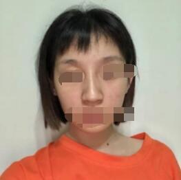 天津袁志玮医生肋软骨隆鼻案例 看看这位求美者的变化吧