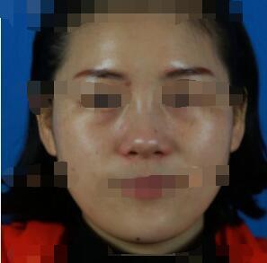 杭州维多利亚整形激光祛斑案例 分享我术后一个月的心得了