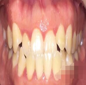 深圳美莱整形隐形牙套矫正案例 术后变化很明显
