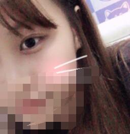 长沙三和整形双眼皮案例