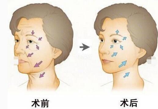 九月关注:玻尿酸除皱适合年龄