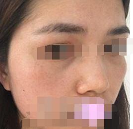 宁波薇琳整形镭射祛斑案例 术后素颜都很自信的那种